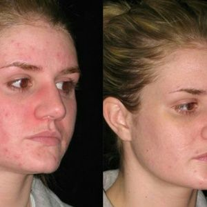 Acne removing soap that works